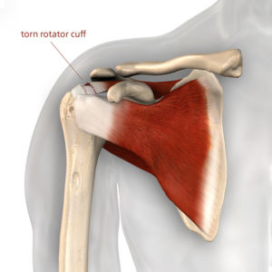 Illustration of a torn rotator cuff at ASI
