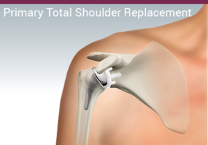 Illustration for total shoulder replacement from ASI