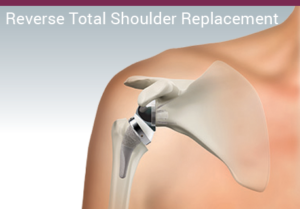 Illustration for reverse total shoulder replacement at ASI